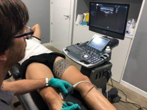 Exploración y control de la lesión con ecografía 300x225 - Cómo tratar correctamente las lesiones de rodilla