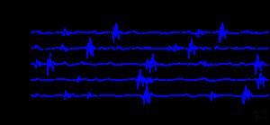 4 300x139 - Fisioterapia y electromiografía en patología neuromuscular