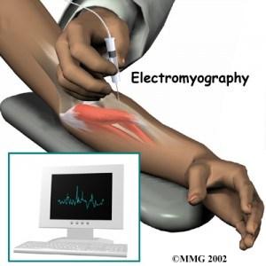 5 - Fisioterapia y electromiografía en patología neuromuscular