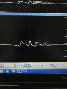 7 1 225x300 - Fisioterapia y electromiografía en patología neuromuscular