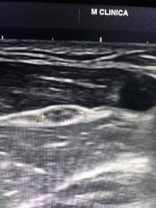 8 1 225x300 - Fisioterapia y electromiografía en patología neuromuscular